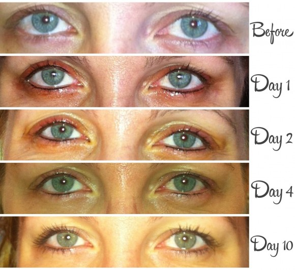 Permanent-Eye-Makeup-before-during-after-photo.jpg