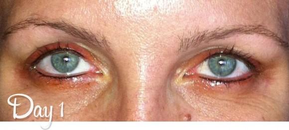 Permanent Eyeline Day 1