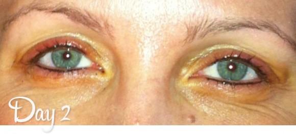 Permanent Eyeliner Day 2