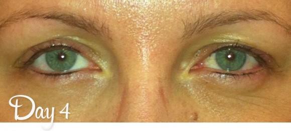 Permanent Eyeliner Day 4