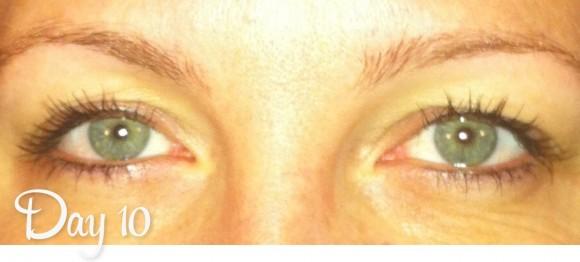 Permanent Eyeliner Day 10